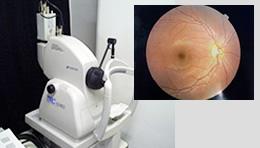 ぶどう膜炎の検査