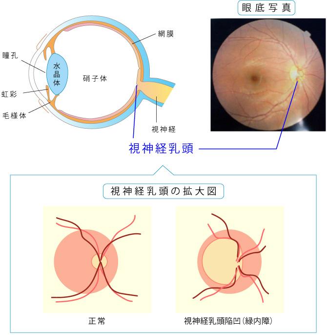 視神経乳頭陥凹、視神経繊維層欠損の図