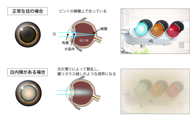正常な目の場合、ピントが網膜上で合っている。白内障がある場合、磨りガラス越しのような視界になる