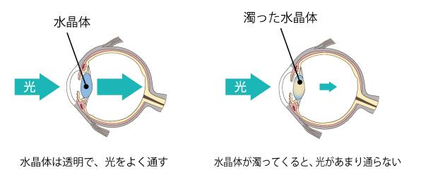 水晶体は透明で、光をよく通す。水晶体が濁ってくると、光があまり通らない