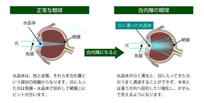 正常な眼球と白内障の眼球。水晶体が白く濁ると、目に入ってきた光がうまく通過せず、本来とは違う方向へ屈折したり散乱し、かすんで見えるようになります。