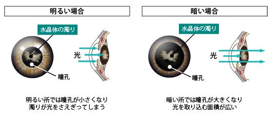 明るい所では瞳孔が小さくなり濁りが光をさえぎってしまう。暗い所では瞳孔が大きくなり、光を取り込む面積が広い。