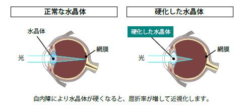 白内障により水晶体が硬くなると、屈折率が増して近視化します