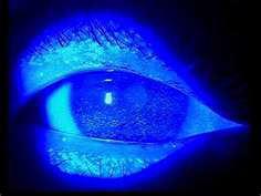 Typical eye disorder