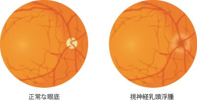 視神経乳頭浮腫