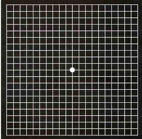 Amsler Grid Test