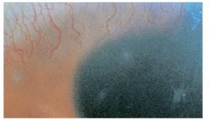 角膜新生血管